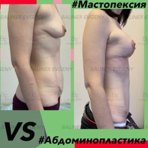 Абдоминопластика и подтяжка груди Москва