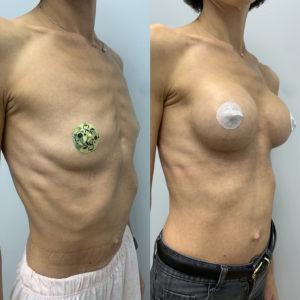 Увеличение груди. Объём 285 мл.