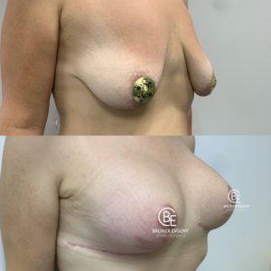 Подтяжка груди с имплантами. Объём 400мл.